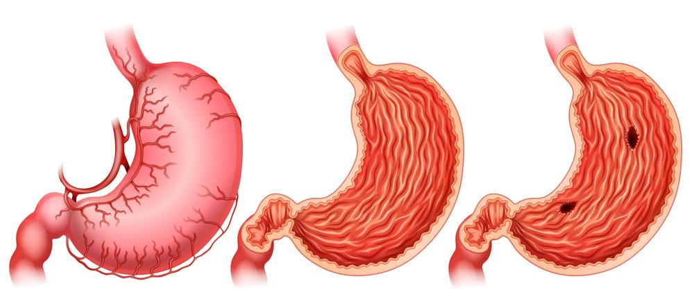 úlceras de estómago